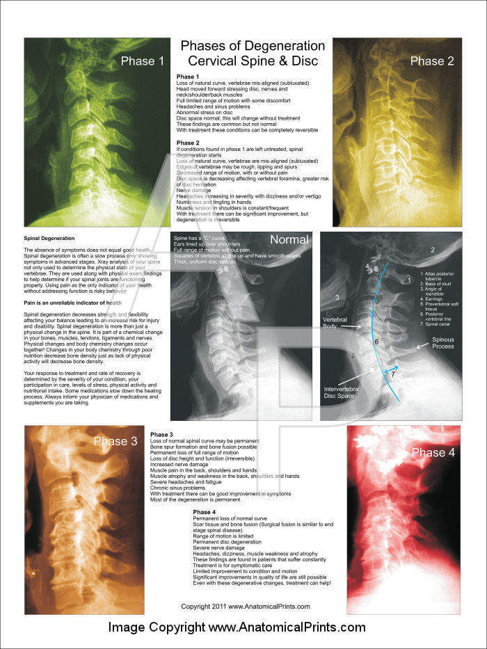 Cervical Spinal Degeneration Poster