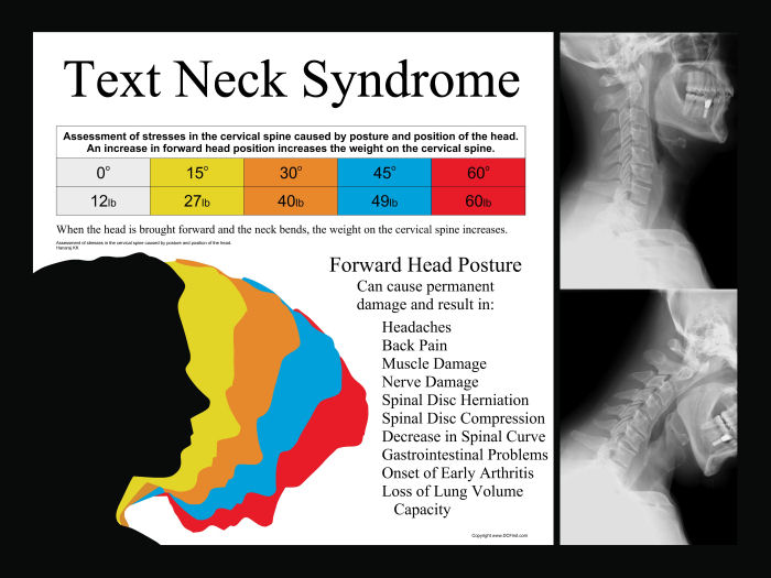 Text Neck Syndrome Poster